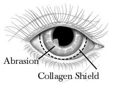 Collagen as contact lens