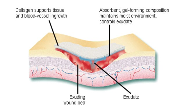 Schematic of wound healing mechanism of collagen